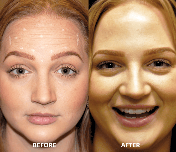 botox-after-2